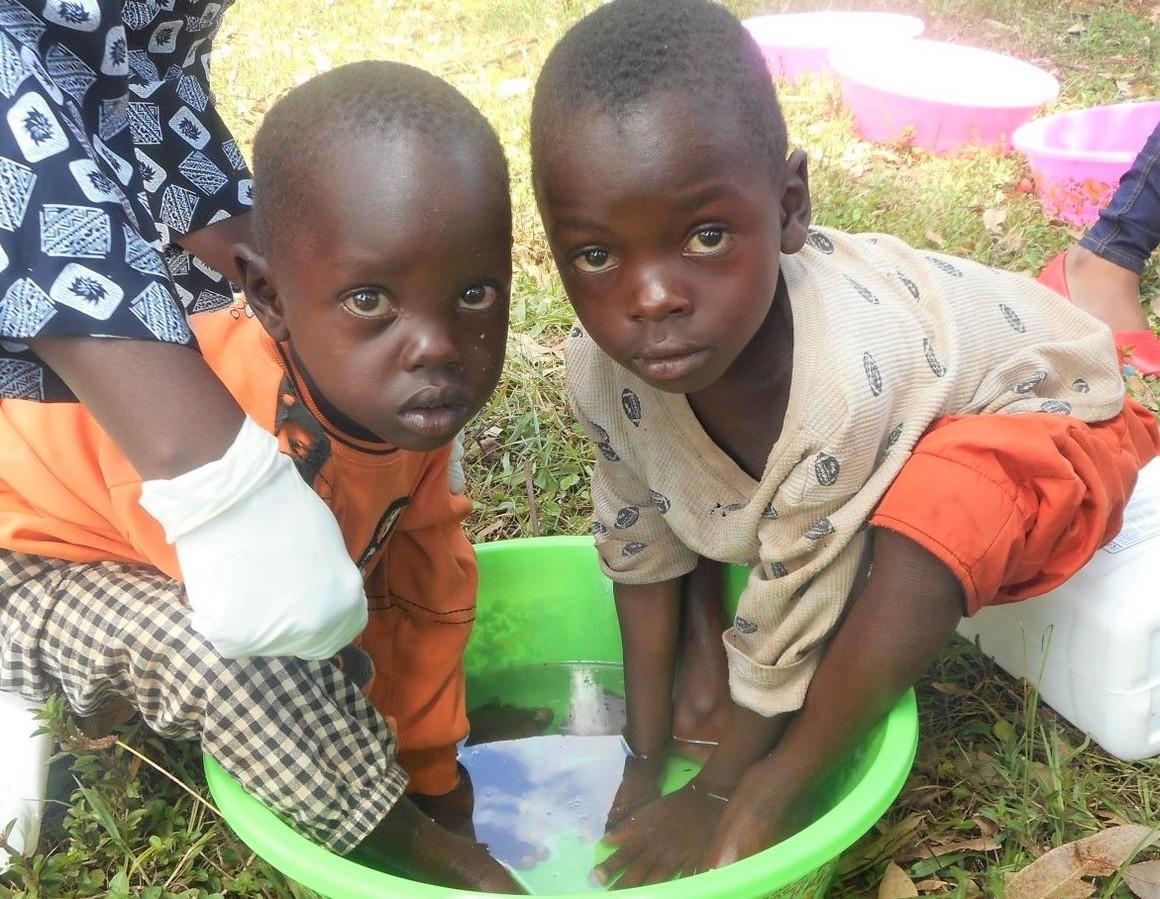 Hälsokampanj som projekt, barn får behandling mot jiggers.