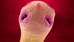 Att leva med parasiter